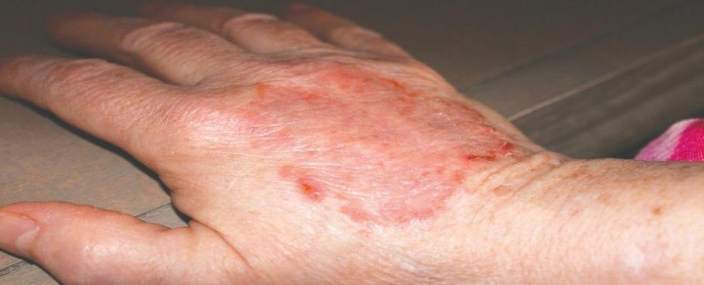 I sintomi del lupus comprendono prurito e brutte eruzioni discoide, come questa eruzione cutanea che si trova sulla mano del mio amico. Il lupus è una malattia autoimmune che può danneggiare articolazioni, pelle, reni, cuore, polmoni o altre parti del corpo. Foto di Jill Pepelnjak.