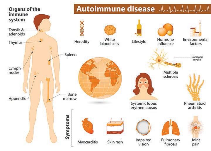 Questo grafico illustra alcune delle cause delle malattie autoimmuni, dei sintomi e degli organi del sistema immunitario. Fonte immagine: National Institute of Environmental Health Sciences (www.niehs.nih.gov).